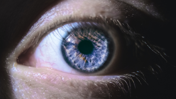 Optic neuritis: What do you need to know about it?