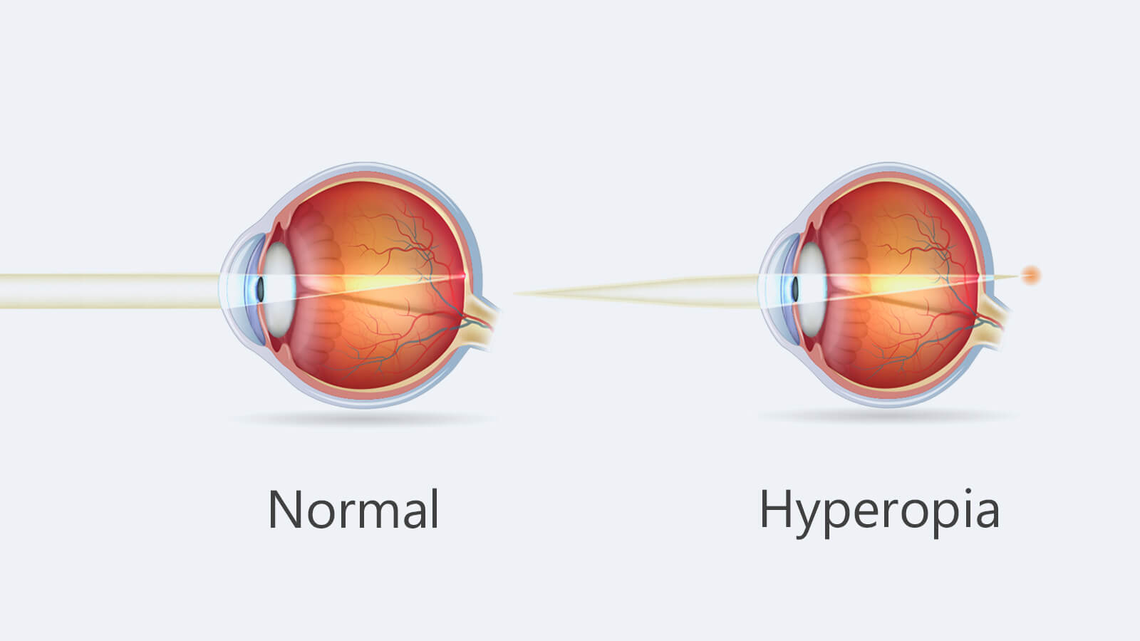 Curious about Hyperopia and its meaning? Here are your answers.