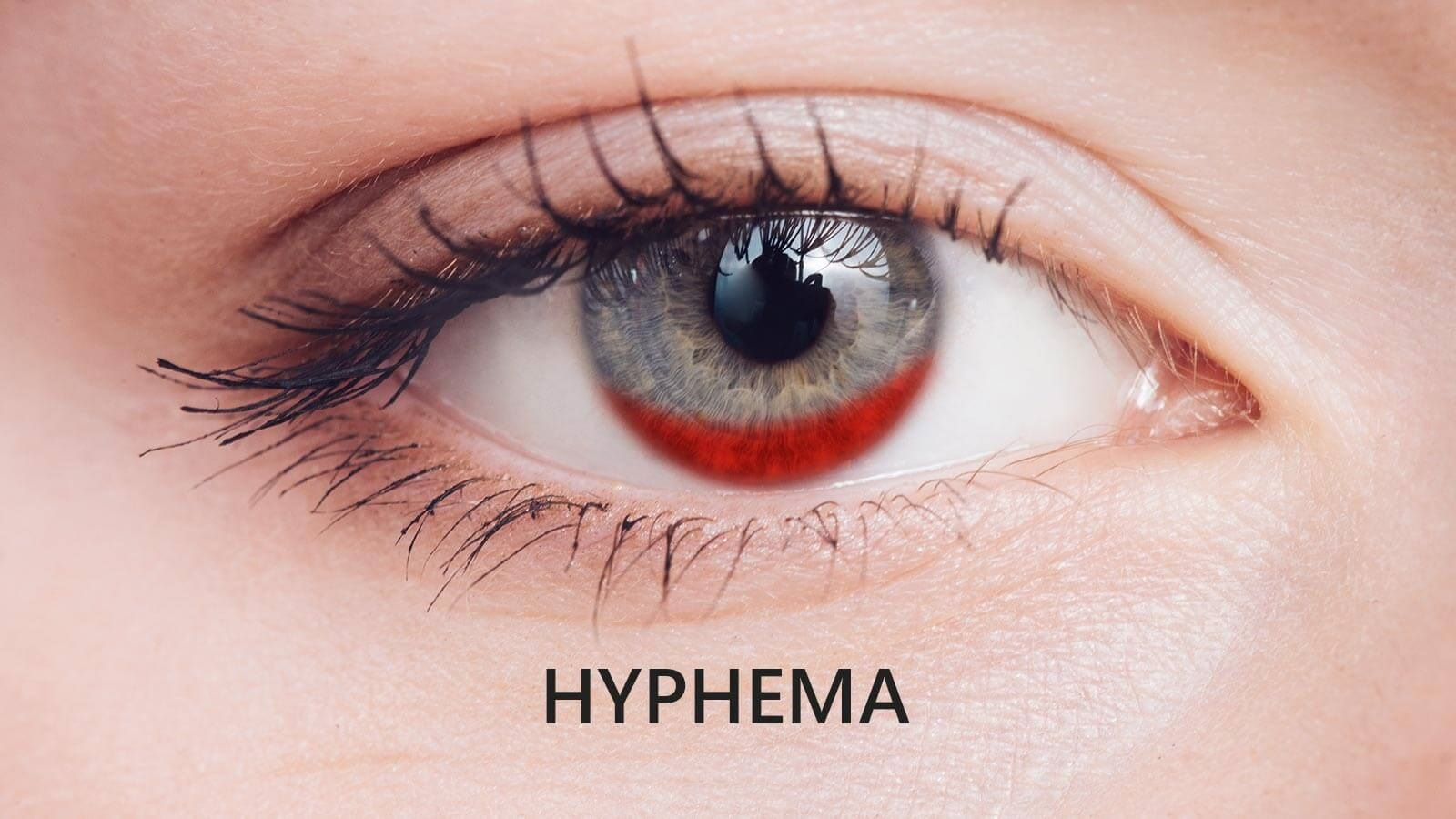 Get to Know Hyphema: Causes, Symptoms, Diagnosis and Treatment?