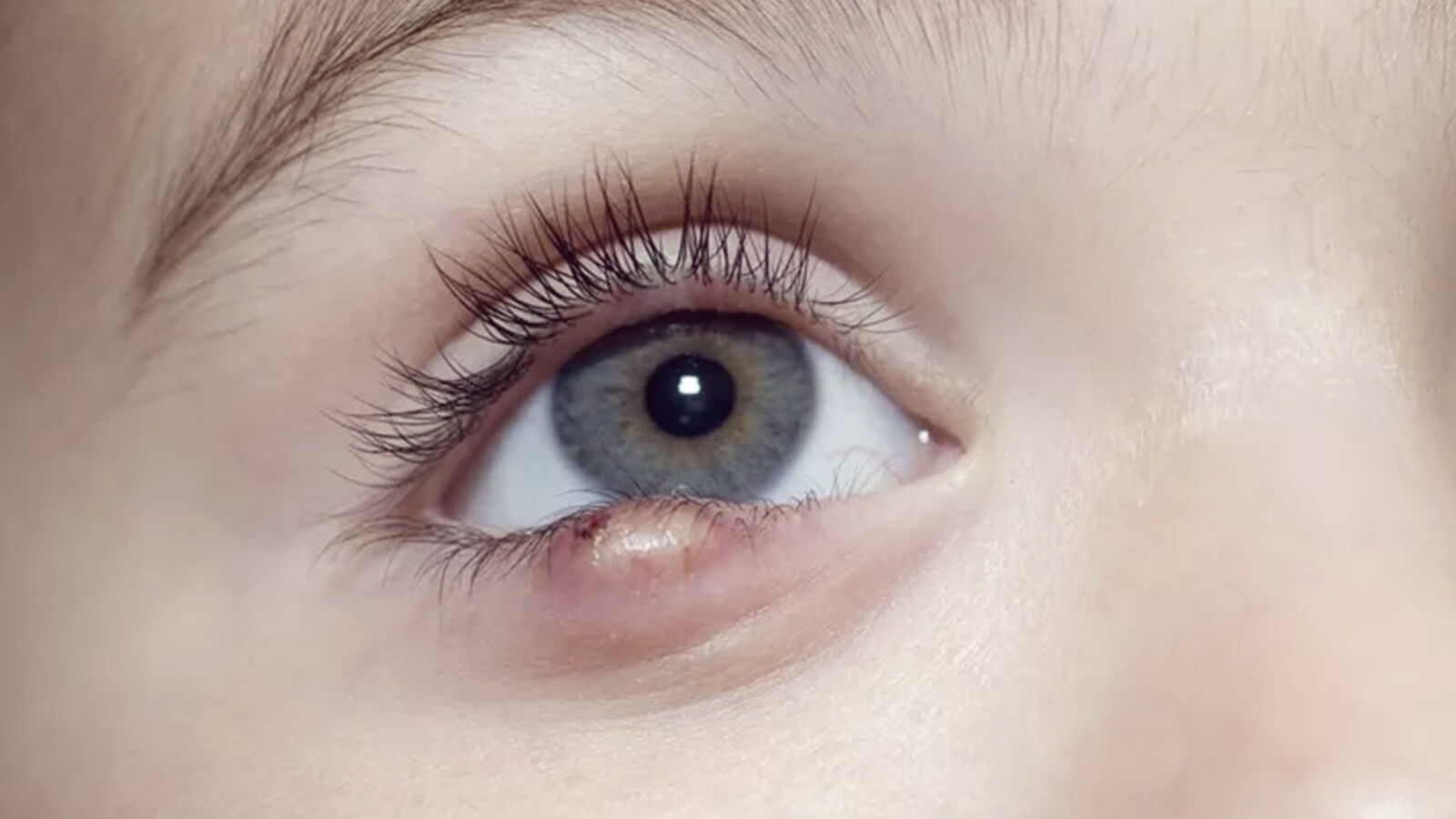 What is Stye and how to get rid of it?