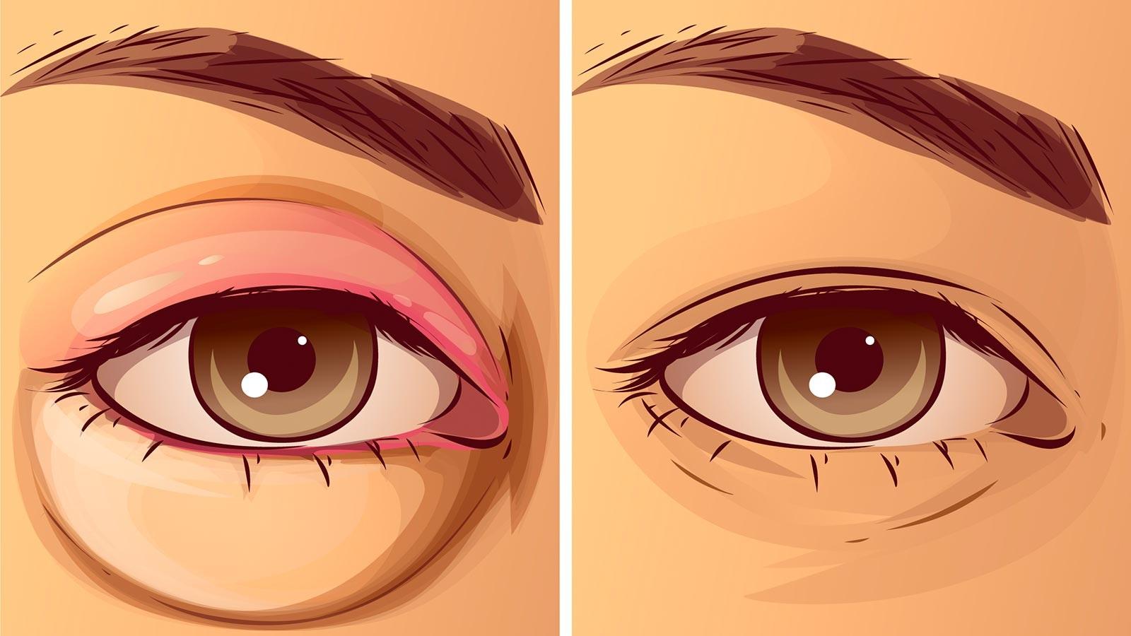 How to treat swollen eyelids?