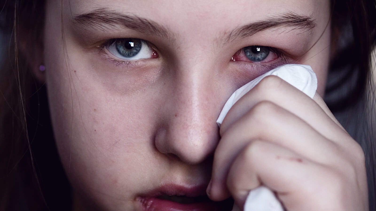 Getting to Know Eye Cold - Symptoms, Treatment and Prevention