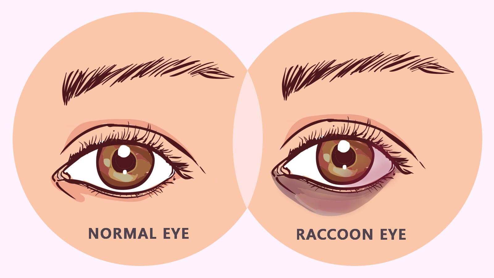 Getting to Know Everything About the Raccoon Eyes Condition