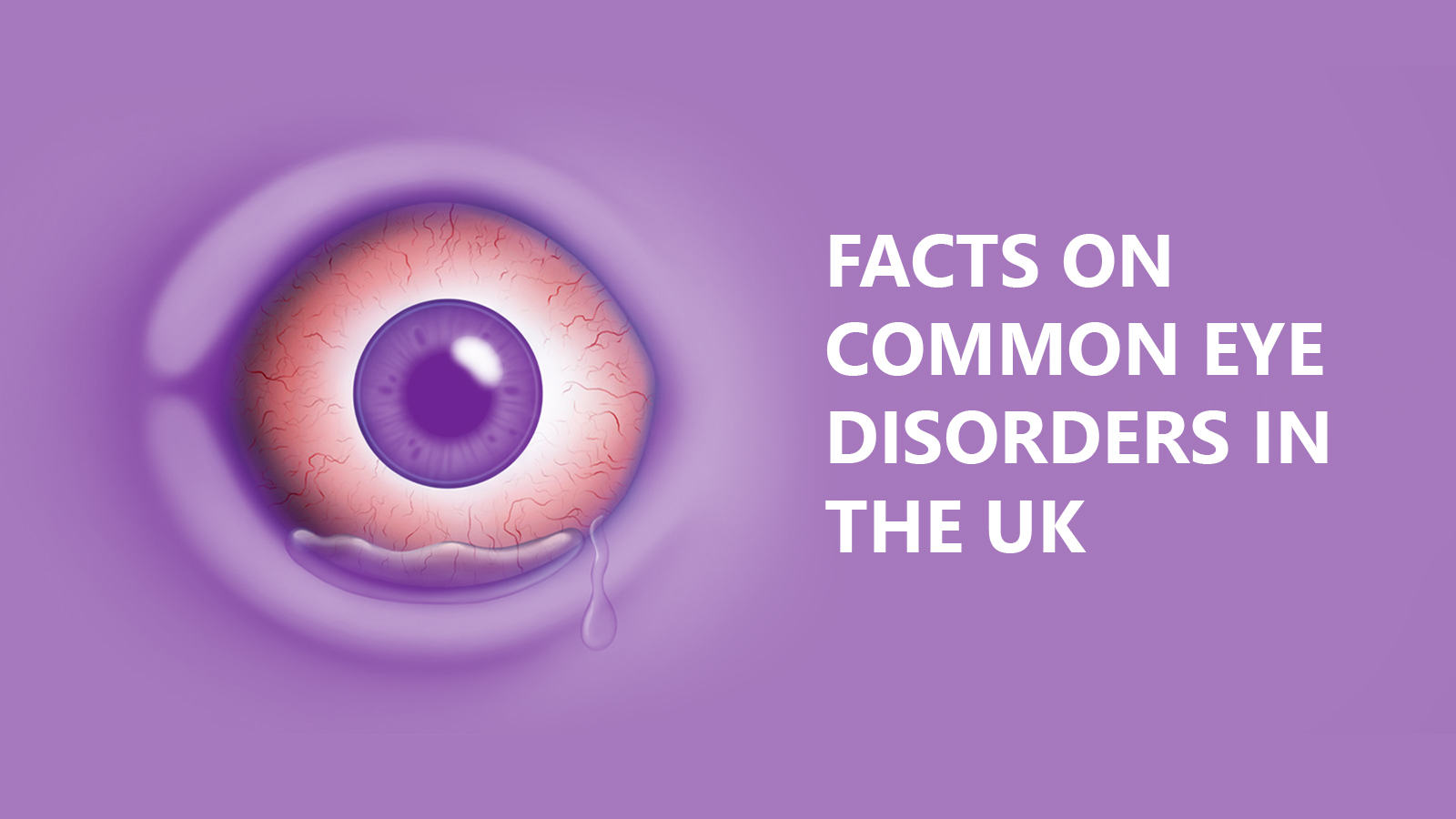 7 Facts on common eye disorders in the UK