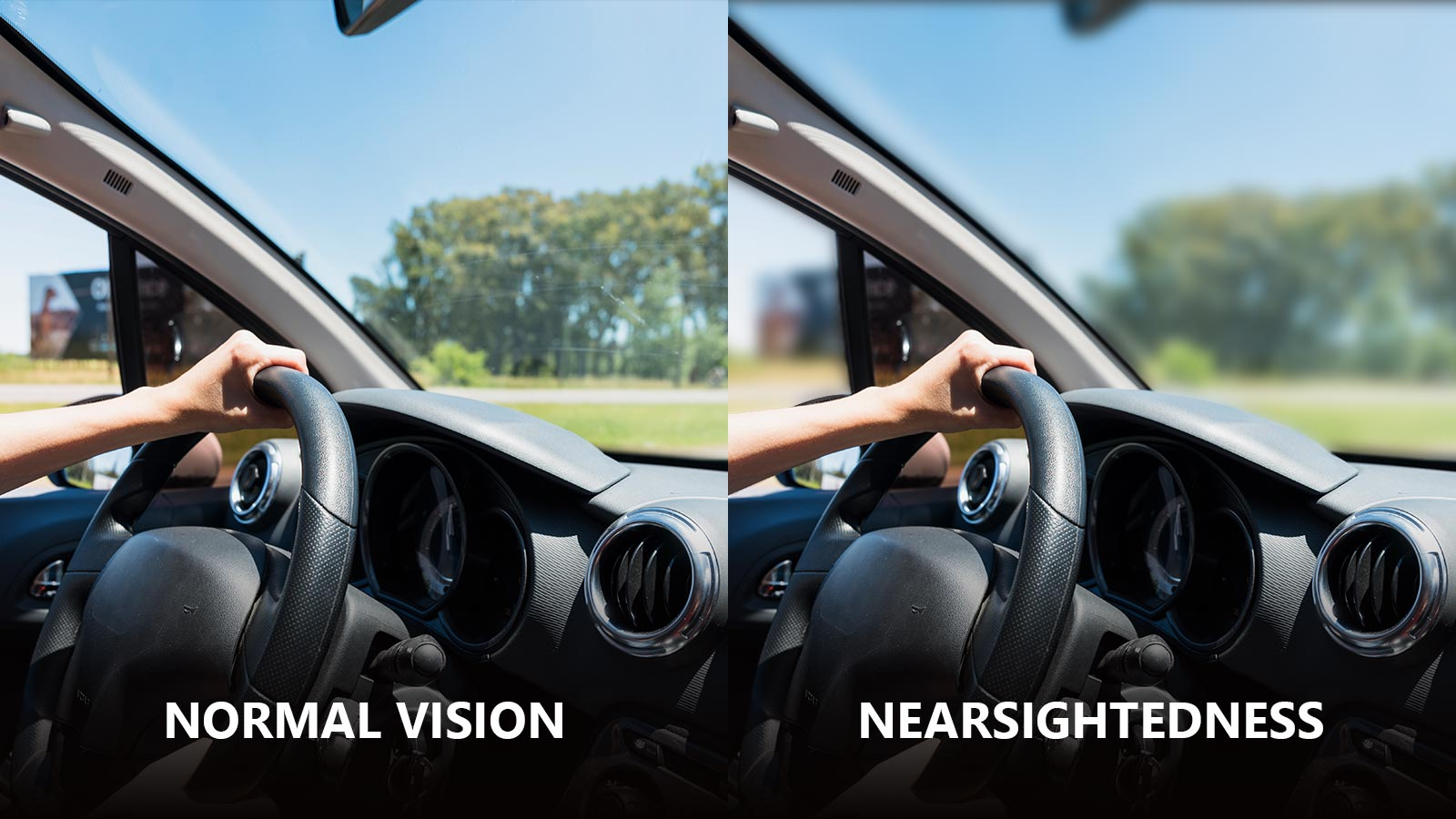 A guide to Nearsightedness: Understand the condition, symptoms and treatment.