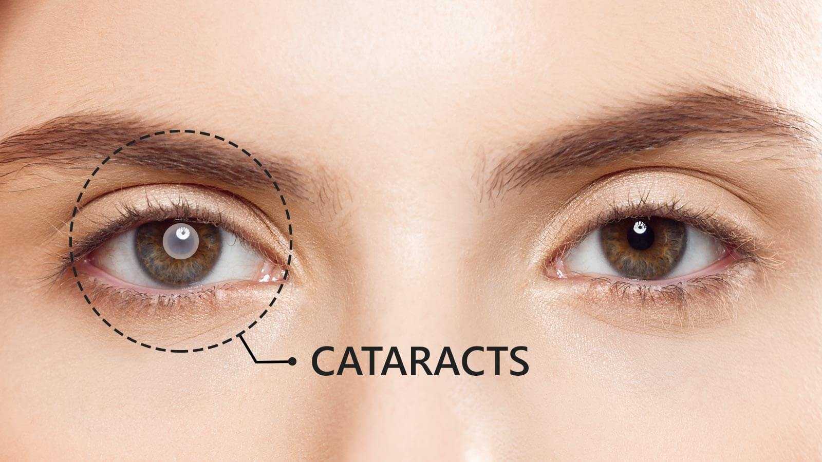 Answers to 10 most-asked questions about Cataracts