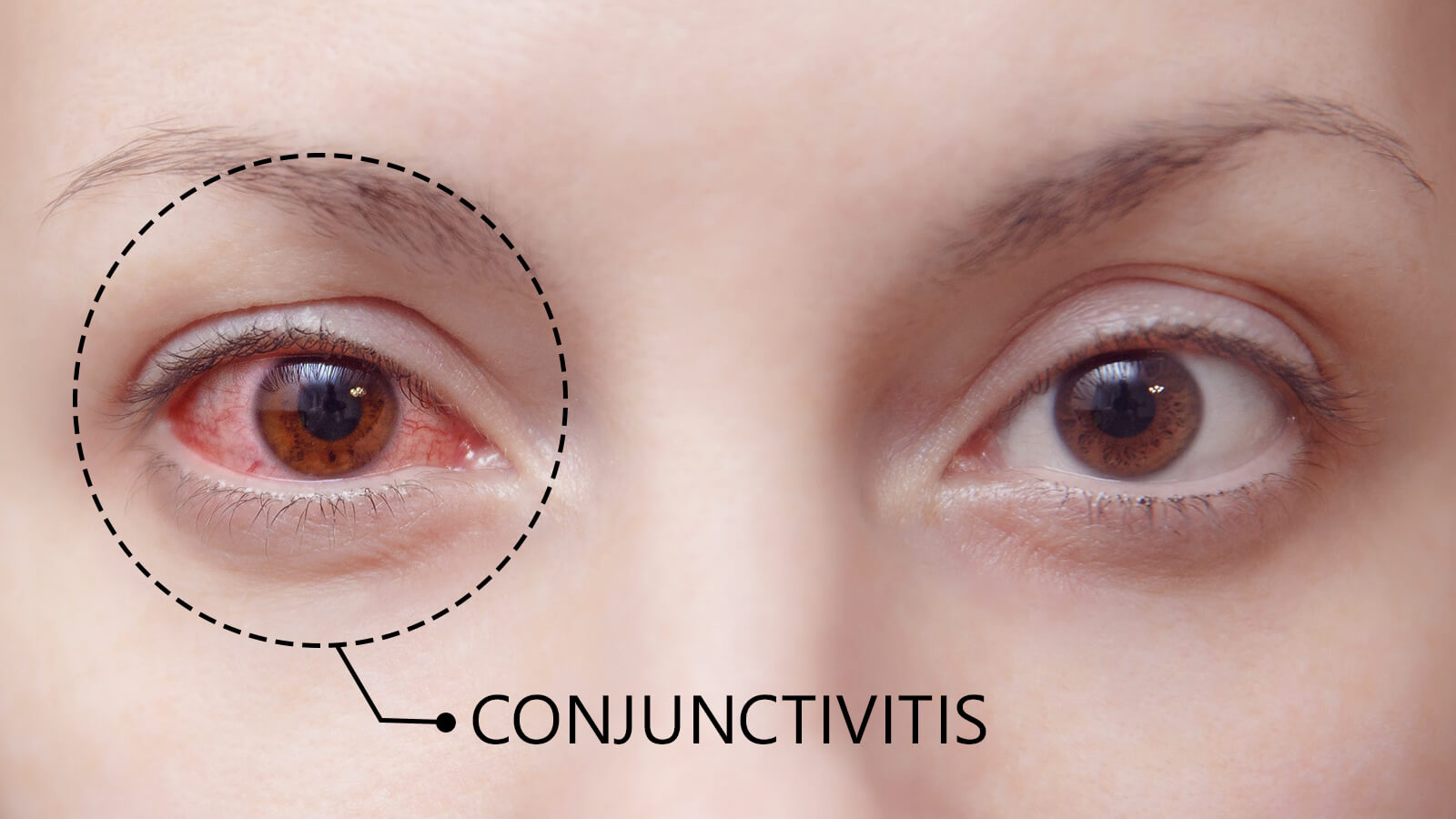 Getting to Know Conjunctivitis - The Pink Eye Disease in Detail.