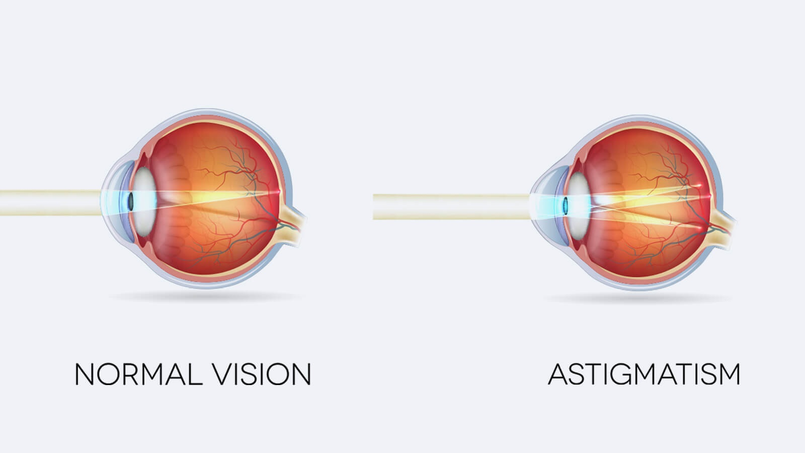 Astigmatism and its effects, symptoms and Treatment