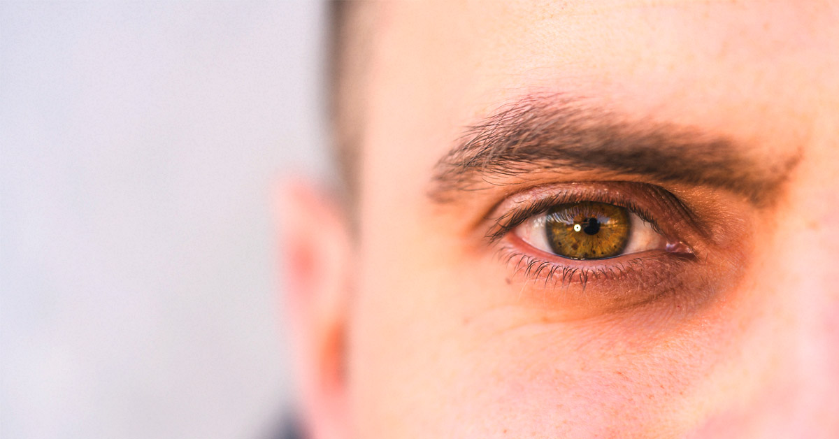 What you must know about Intriguing Eye freckles?