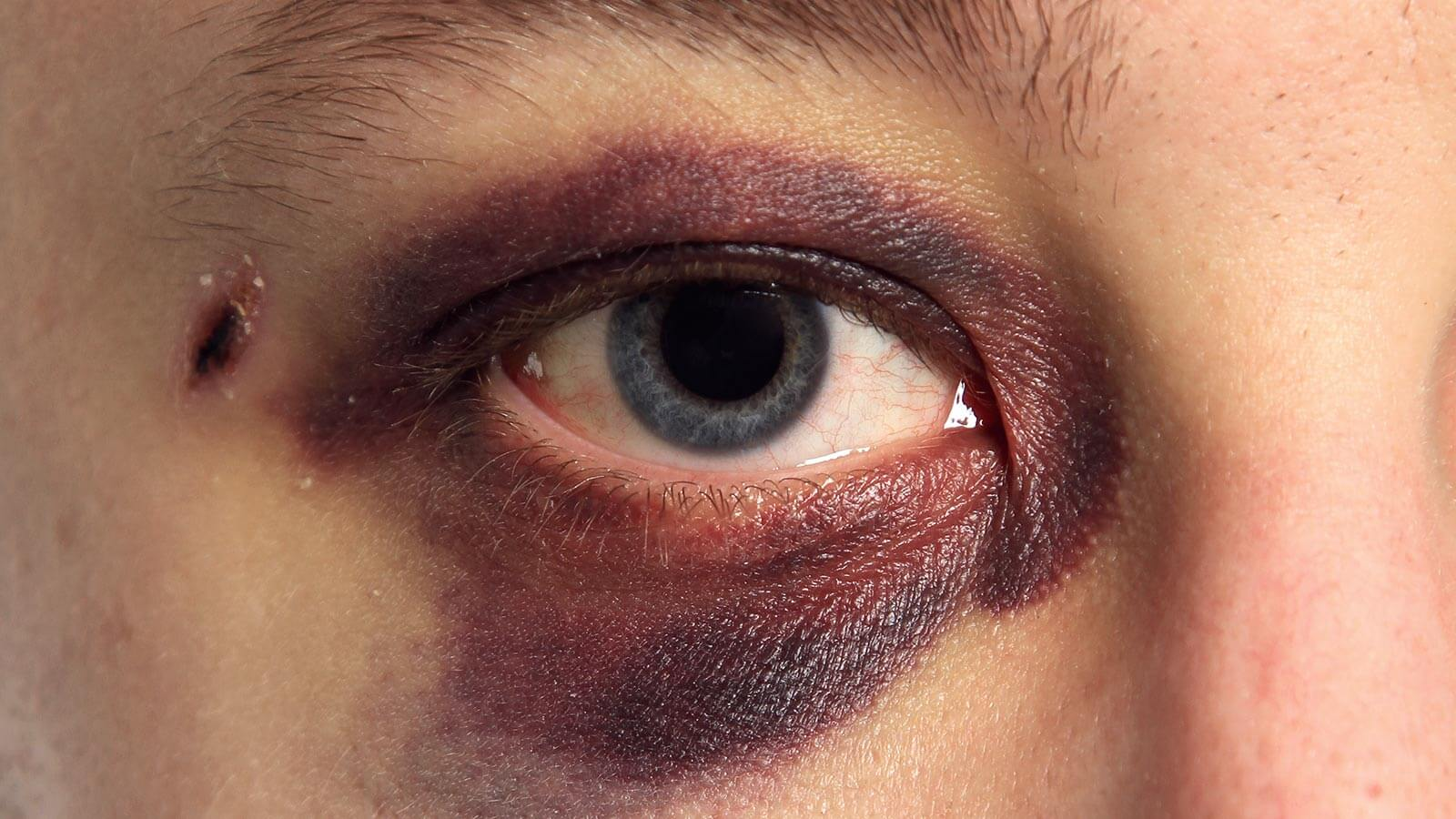 Everything You Need to Know About Black Eye Treatment