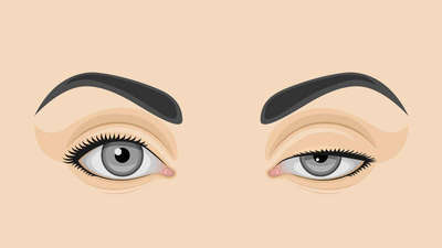 Ptosis: Everything you need to know about eyelid drooping