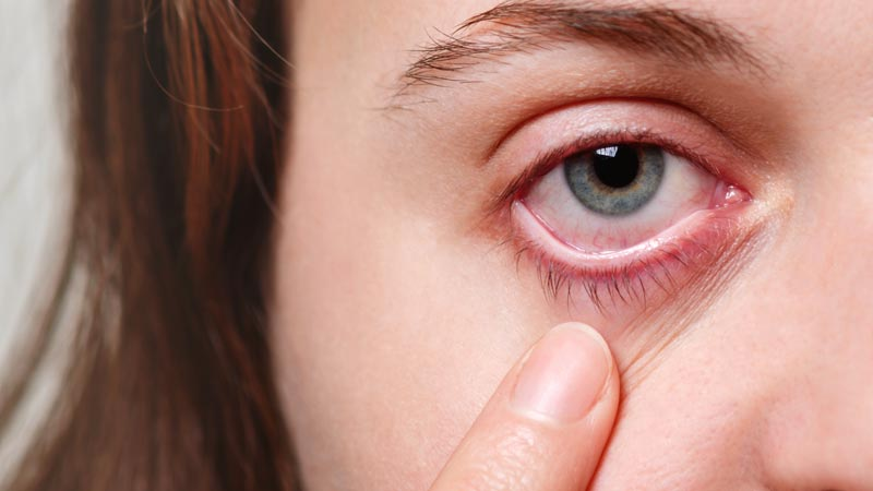 Redness relieving eye drops: The good, the bad and the ugly