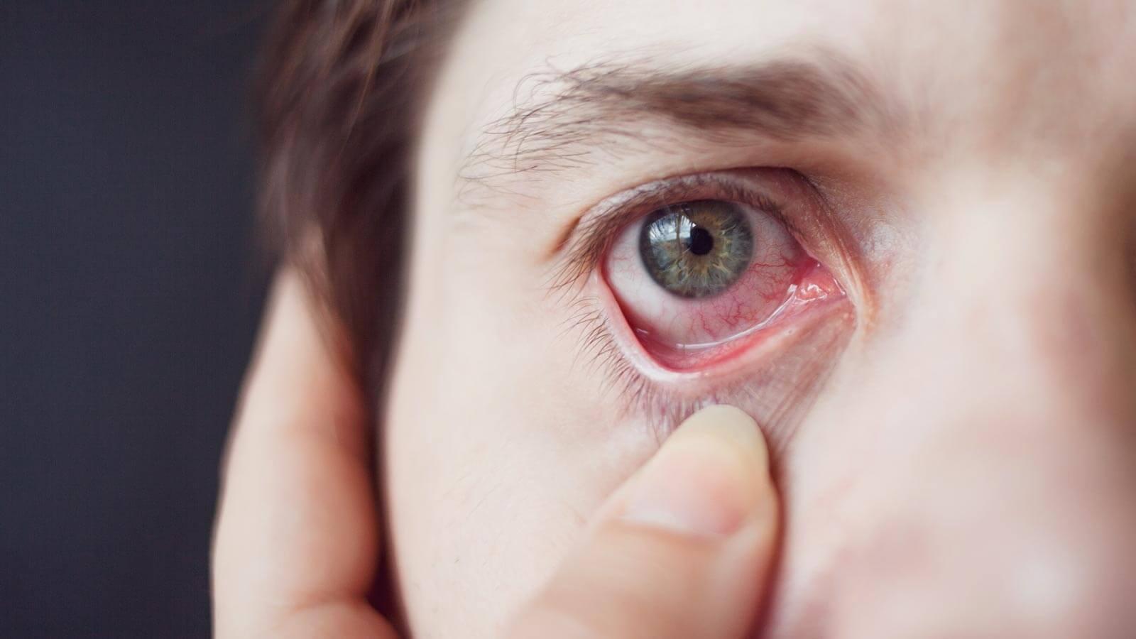 Symptoms Foreign Object in Eye