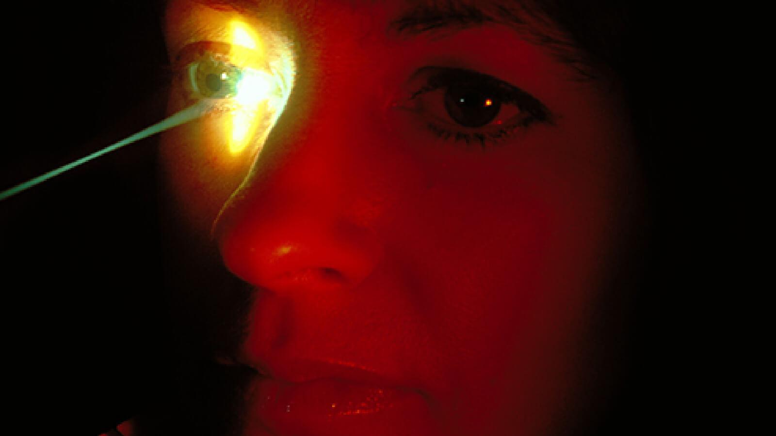 laser procedure for glaucoma