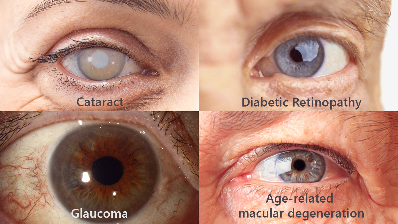 Stay conscious of family eye history