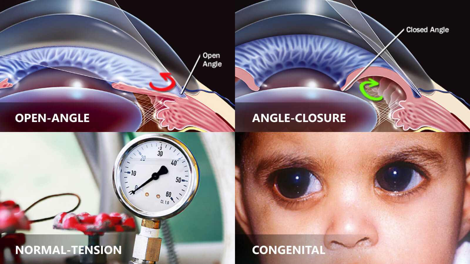 glaucoma types