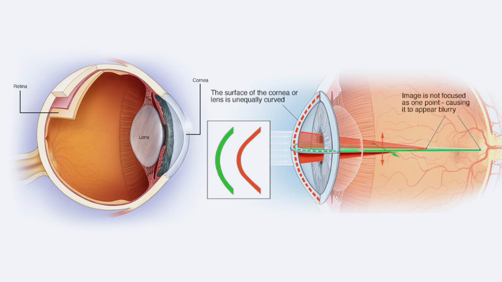 What causes Astigmatism