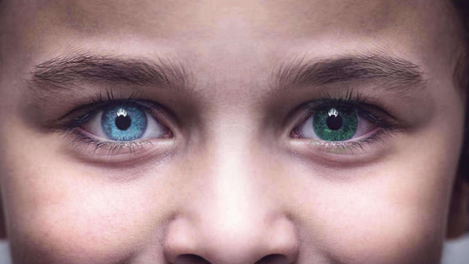 Types of Heterochromia