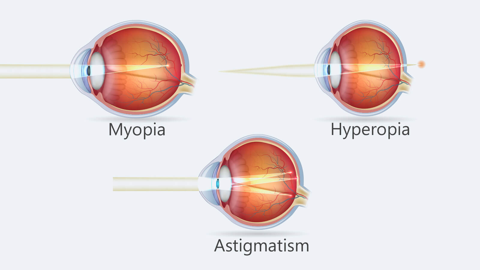 Myopia hyperopia and astigmatism explained