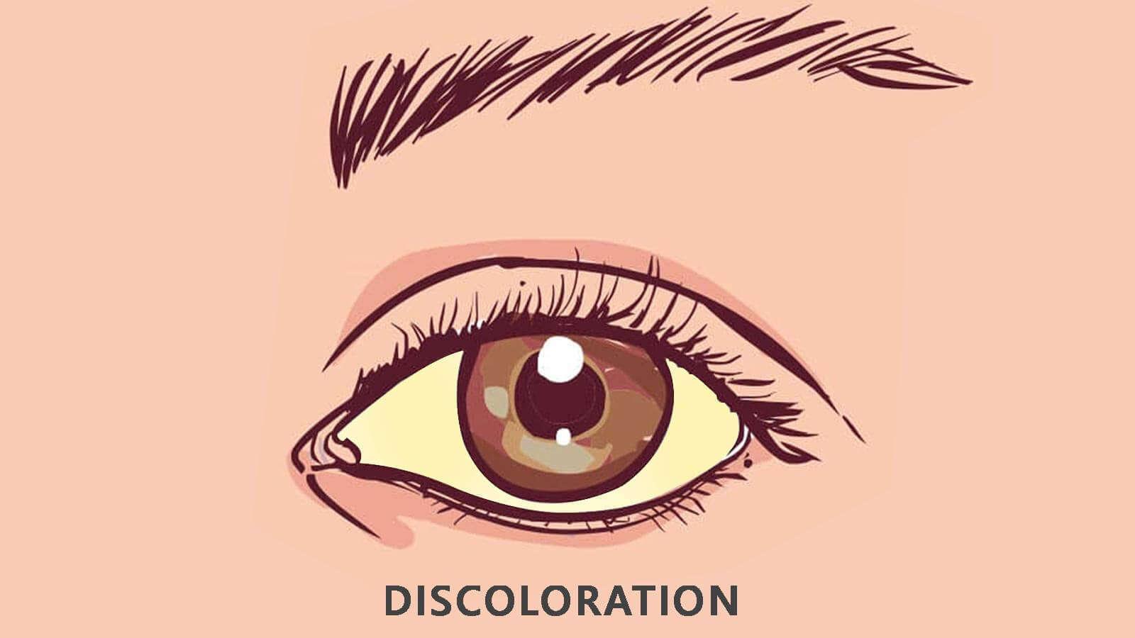 Raccoon Eyes Symptoms or Signs