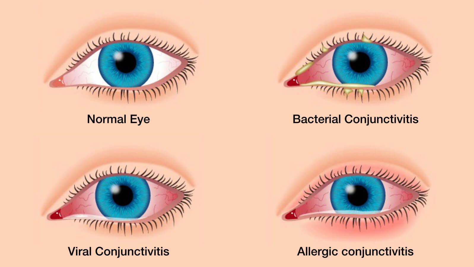 primary conjunctivitis types