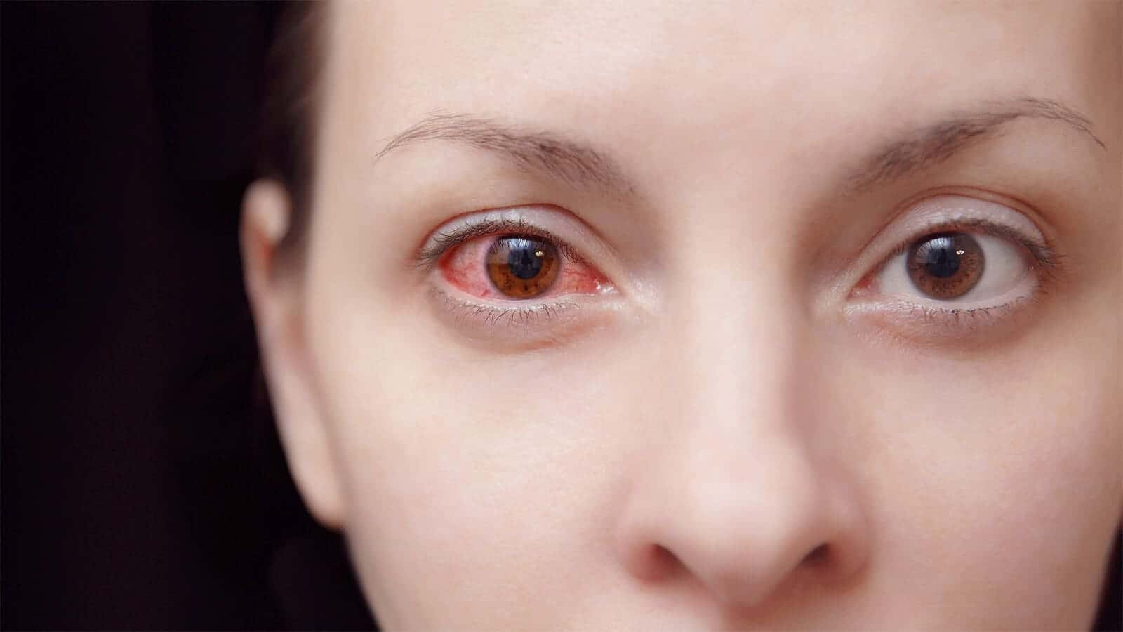 Conjunctivitis or Pink eyes