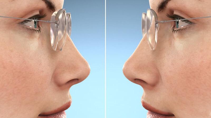 High index lenses make eyes look smaller