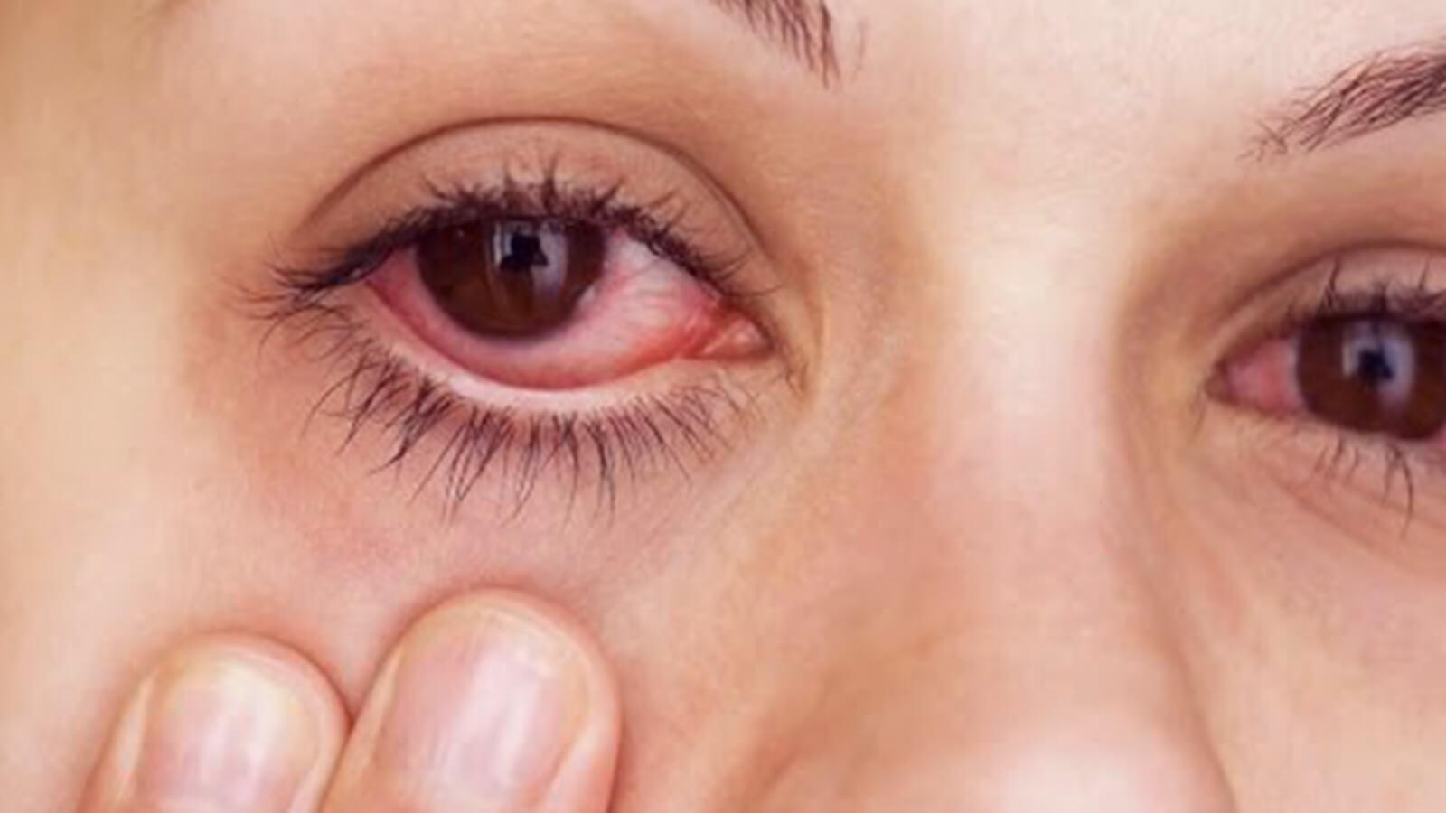 smoking causes pink eyes