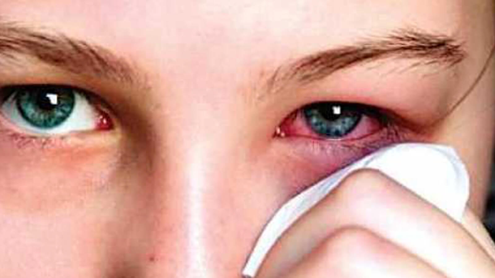 smoking causes eye infections
