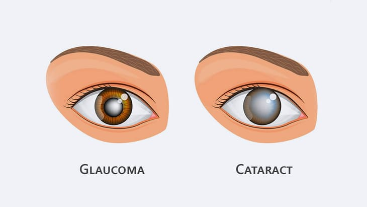 Cataracts and Glaucoma