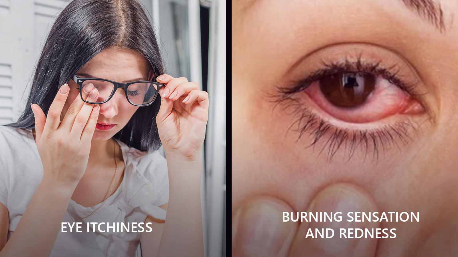 Dry-eye syndrome creates itchiness, burning sensation, redness and often blurred vision in our eyes.