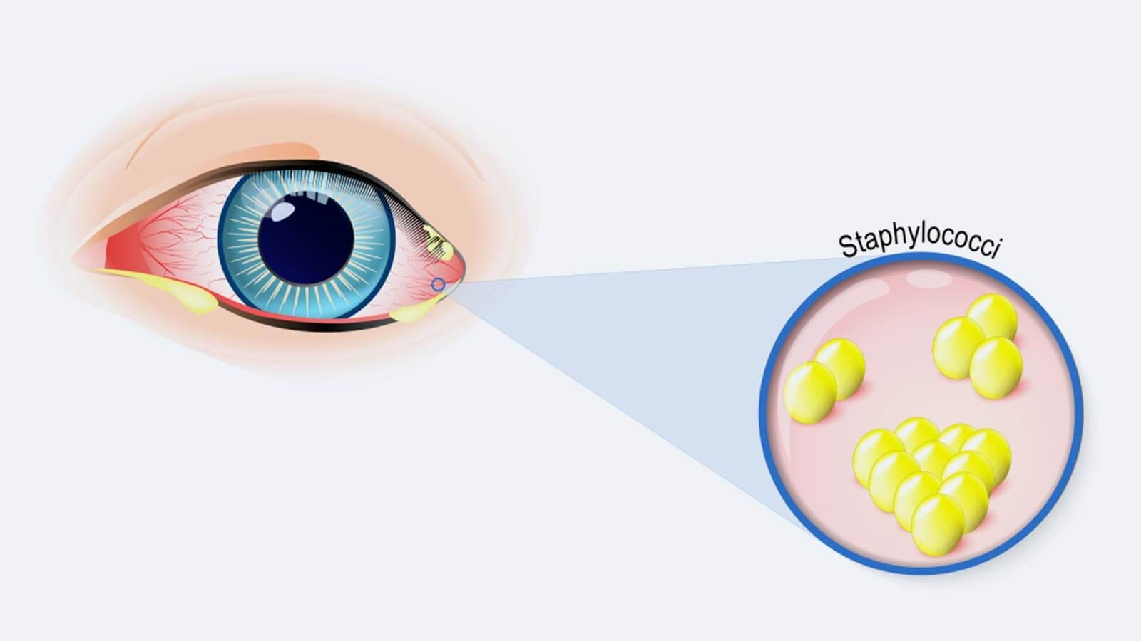 What is eye discharge: why does it develop around the eye?